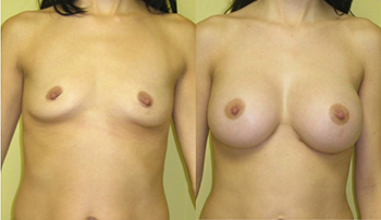 Composite Breast Augmentation