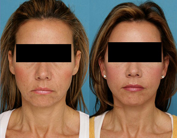 Facelift with fat injections