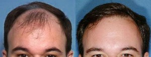 Before and After Hair Transplant NeoGraft