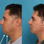 Side view of patient with sagging under the chin