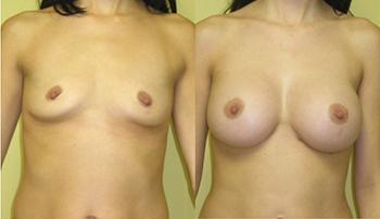 Composite Breast Augmentation